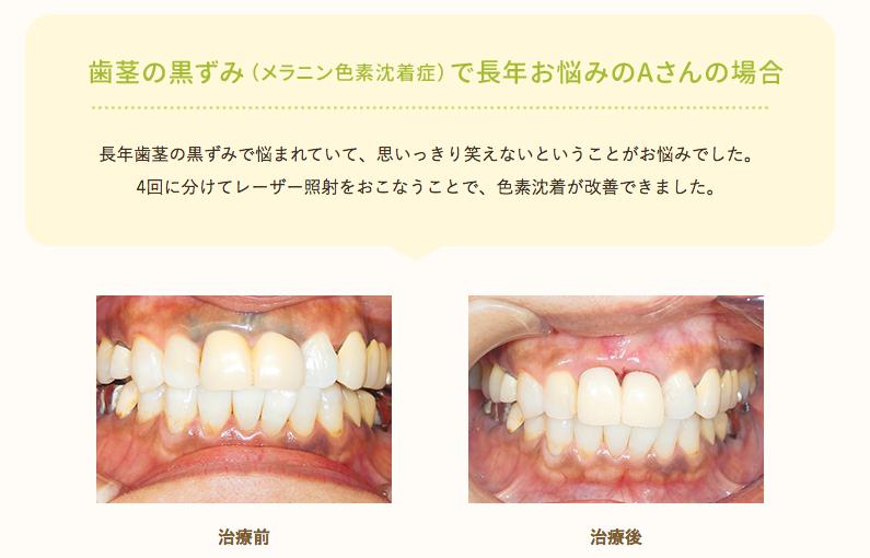 歯茎の黒ずみ(メラニン色素沈着症)