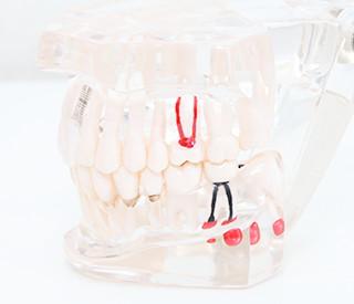 むし歯の歯型模型